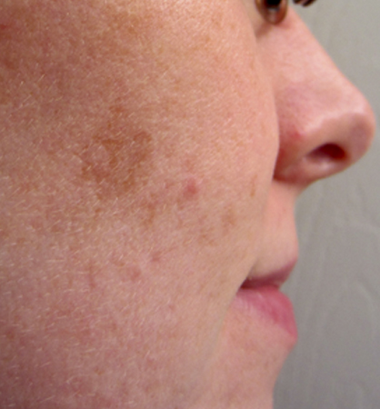 dark spots acne specialist old bethpage acne specialist old