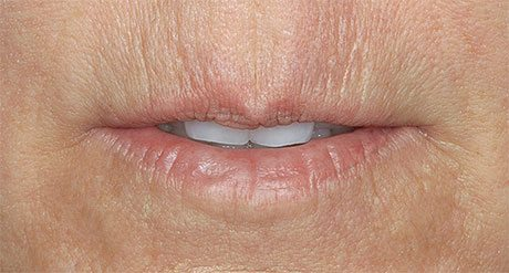 Before treatment in lip with Restylane