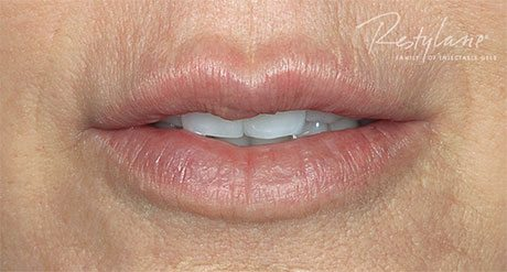 Lips after 3.4 mL of Restylane (including initial and touch-up treatments).