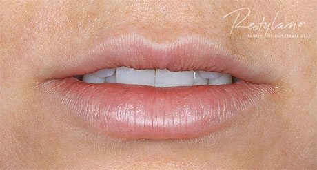 Lips after 2.7 mL of Restylane (including initial and touch-up treatments).